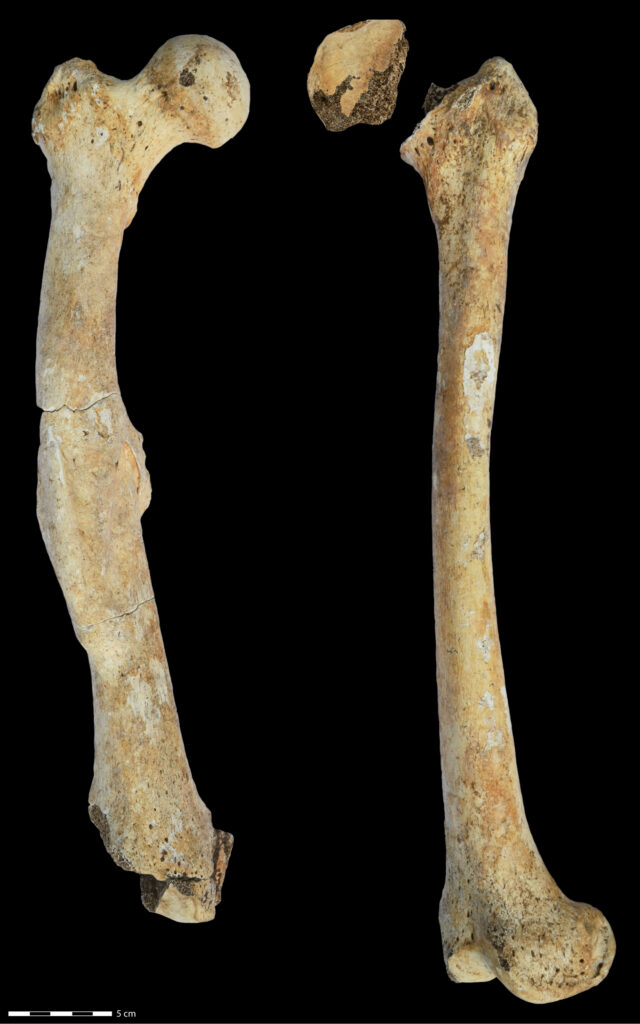 """Fotografie des rechten und linken Oberschenkelknochens, die für die Studie über """"Seltene"""" Krankheiten untersucht wurden."""