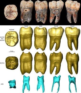 Analyse des Kinderzahns, Bilder zeigen verschiedene Ansichten und Analysemethoden des Zahns