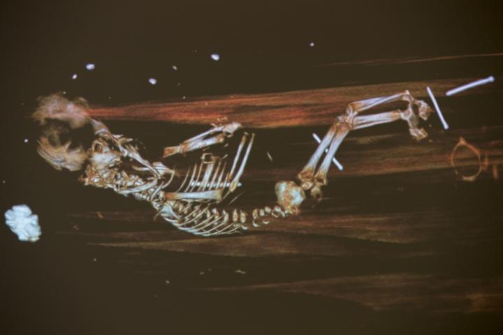 Röntgenbild des Fötus. Deutlich sind bereits die Wirbelsäule und die Rippen zu erkennen. Der Körper ist leicht gekrümmt, die Arme sind vor der Brust angewinkelt, die Beine ausgestreckt.