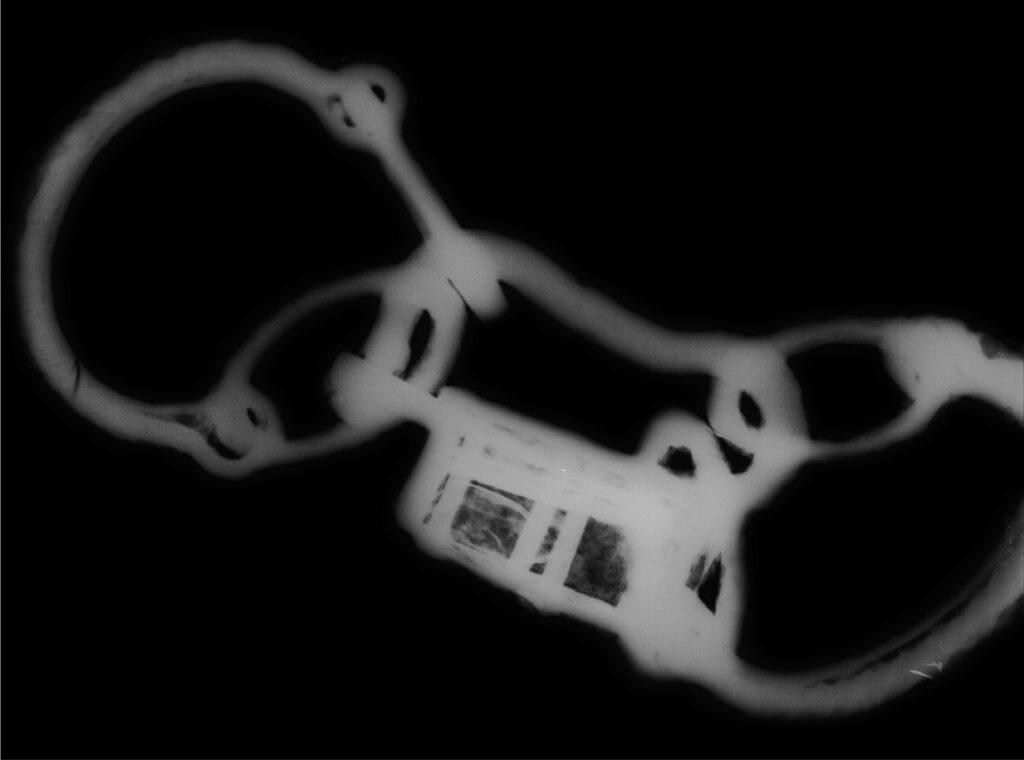 Eine Röntgenaufnahme der gefunden Fesseln